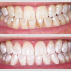 Illustrasjonsbilde for kosmetisk tannbehandling.